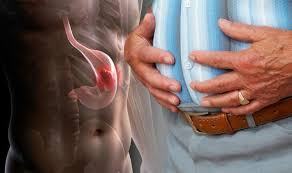 آیا سرطان معده ارثی است؟| پیشگیری از سرطان معده با مشاوره و آزمایش ژنتیک