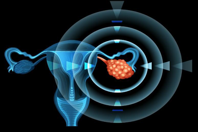 راز پیشگیری از سرطان چیست؟|مشاوره ژنتیک برای پیشگیری از سرطان تخمدان ارثی