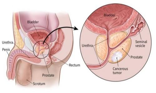 ارثی بودن سرطان پروستات