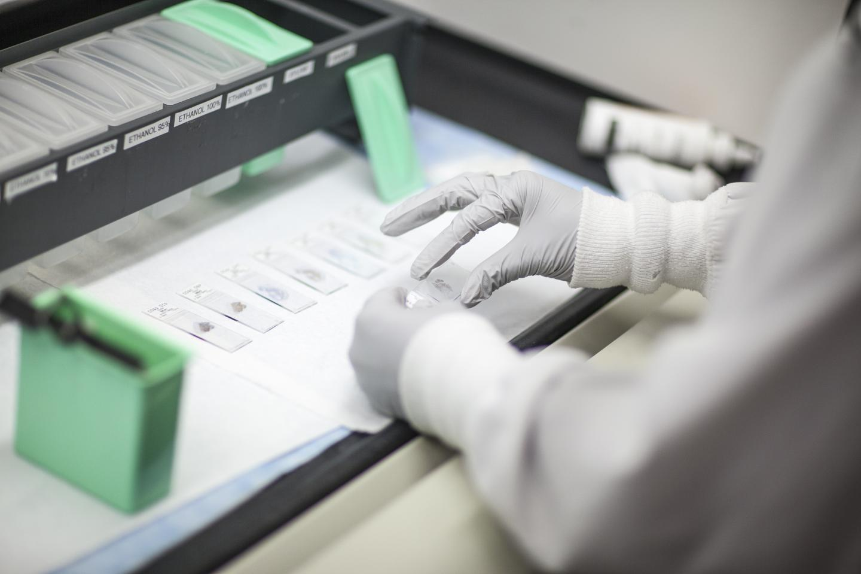 قیمت آزمایش سرطان چقدر است؟ کمرشکن یا مناسب؟!