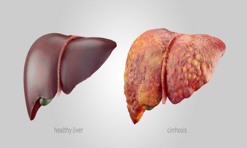 پیشگیری از سرطان کبد