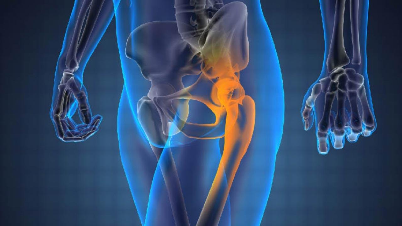 علت سرطان استخوان چیست ؟ آیا سرطان استخوان ارثی است ؟