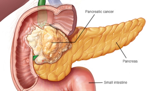 علائم سرطان لوزالمعده