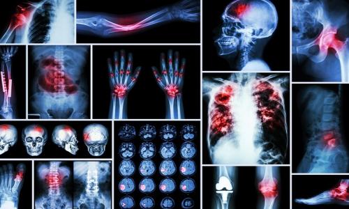 آیا سرطان استخوان ارثی است