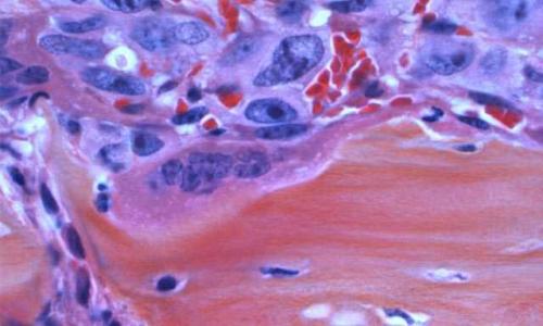 پیشگیری از سرطان مغز استخوان