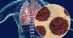 پیشگیری از سرطان ریه