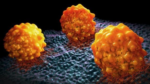 کدام گزینه به پیشگیری از سرطان کمک میکند؟|پیشگیری از سرطان با آزمایش ژنتیک