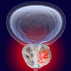 نقش ژن ها در ابتلا به سرطان پروستات