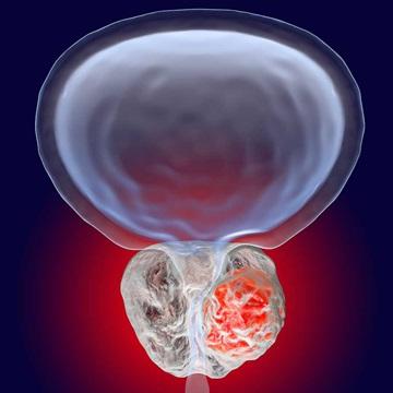 دلایل سرطان پروستات| تشخیص سرطان پروستات با آزمایش ژنتیک